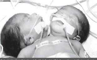 ??  ?? Doctors in Jaipur, the capital and largest city of the Indian state of Rajasthan, say they are battling to save the twins
