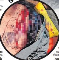 ??  ?? 1. El robo de un joven quedó registrado en video. 2. El herido del otro caso se encuentra estable.