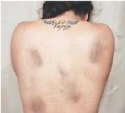 ??  ?? La artista se defendió de las acusaciones de montaje y reveló que tiene el parte médico.