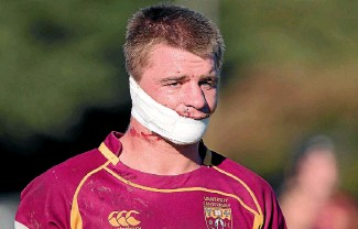 ?? PHOTO: JOSEPH JOHNSON ?? University captain Sam Godwin suffered a nasty facial injury which forced him off the field playing in a club rugby match this season in Christchurch .