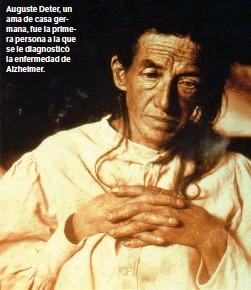 ??  ?? Auguste Deter, un ama de casa germana, fue la primera persona a la que se le diagnosticó la enfermedad de Alzheimer.