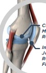 ??  ?? AFTER HYALGAN® GEL TREATMENT Cushoning Medicine Relieves Pain Increased Joint Space Reduces Friction