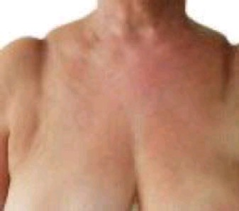 Painful grooves on the shoulders can occur when wearing a bra with narrow  straps which cut in eb46c2c1a
