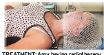 ??  ?? TREATMENT: Amy having radiotherapy