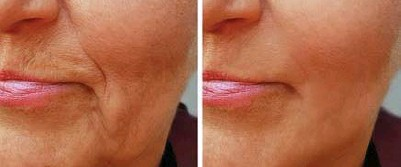 ??  ?? Revolutionary new derma-filler cream takes 10 years off your face in just 10 minutes
