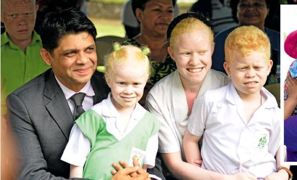 ?? Photo: Ronald Kumar ?? Attorney-General Aiyaz Sayed-Khaiyum with Grace Moce, 6, Sabina Moce, 16, and Sailasa Jr. Moce, 8, during International Albinism Awareness Day at Ratu Sukuna Park on June 13, 2018.
