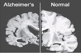 ?? THE ASSOCIATED PRESS/FILES ?? These photographs from Merck & Co. show brains in cross-section. On the left is a brain afflicted with Alzheimer's disease while the image on the right is of a normal brain.