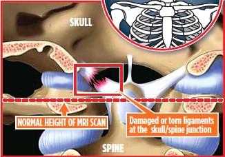 ??  ?? Damaged or torn ligaments at the skull/spine junction NORMAL HEIGHT OF MRI SCAN SPINE SKULL
