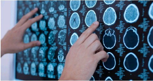 ?? PHOTO SHUTTERSTOCK ?? ABOVE Studies have found that mobile phone users have a significantly higher risk of brain tumours. OPPOSITE PAGE Touch ID can now be used to execute online payments.