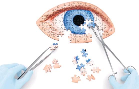 ??  ?? Das Augenlicht manipulieren können: Die ersten Studien zu Gentherapie zeigen mögliche Wege gegen Erblindung auf.