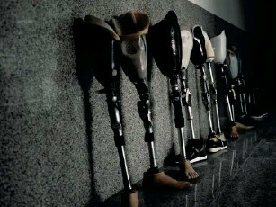 ?? (Paddy Dowling) ?? The corridors of HBK Hospital where an assortment of trial and final - fit limbs await collection