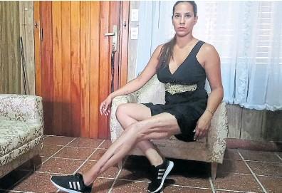 ?? Archivo ?? Romina Meneghini tuvo que someterse a 65 cirugías tras recibir un disparo de escopeta
