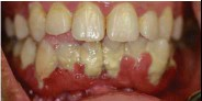 ??  ?? Inadequate oral health can lead to tartar formation and severe gum swelling.