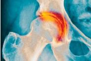 ??  ?? Comme chez certains animaux, notre cartilage « repousse ».