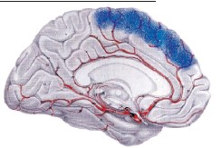 ?? SUPPLIED ?? The brain's four quadrants control various body functions, so the location of the stroke determines what kind of damage is done. The blue area on the scan above is where Tim Seefeldt's brain suffered injury.