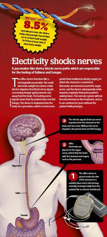 Pressreader Science Illustrated 2015 10 01 Electricity Shocks