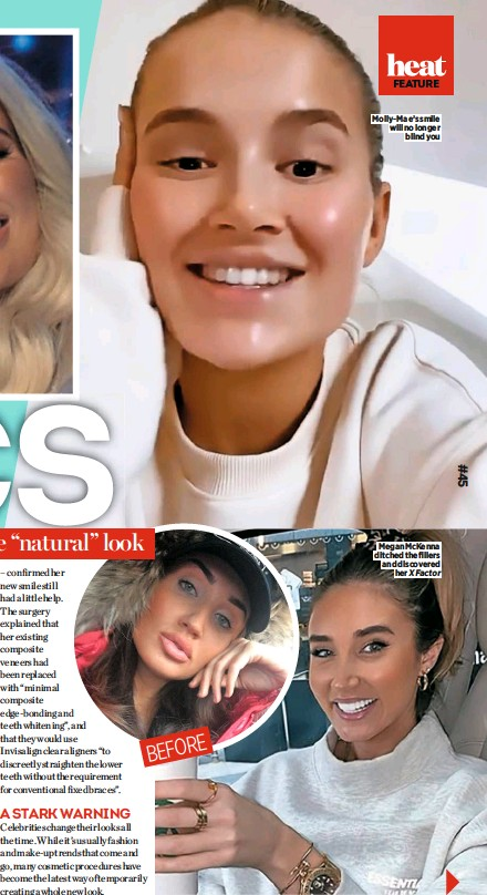 ??  ?? Molly-mae's smile will no longer blind you Megan Mckenna ditched the fillers and discovered her X Factor