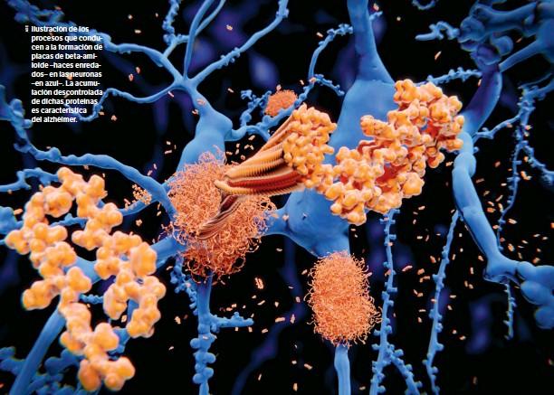 ??  ?? Ilustración de los procesos que conducen a la formación de placas de beta-amiloide –haces enredados– en las neuronas –en azul–. La acumulación descontrolada de dichas proteínas es característica del alzhéimer.