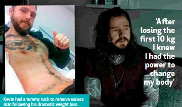 ??  ?? Kevin had a tummy tuck to remove excess skin following his dramatic weight loss. He covered the surgery scars with tattoos.