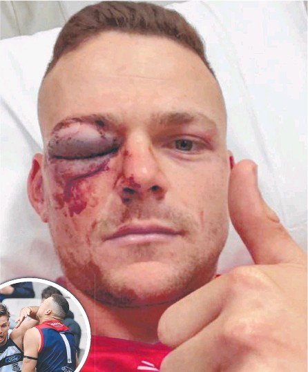 ??  ?? Melbo Melbourne defender Steven May shows off his fractured eye-socket from his hospital bed after a collision with Cats star forward Tom Hawkins (inset).