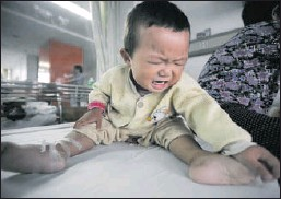 ?? Getty Images ?? SUFFERING BABY: Tian Yaowen, 15 months, who suffers with kidney stones, cries in a ward of the Tongji Hospital on Monday in Wuhan, China. Sanlu, China's biggest milk powder producer with almost a fifth of the market, recalled 11,086 tons of milk powder...