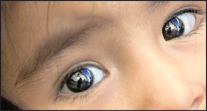 ??  ?? A new type of contact lens may slow down sight deterioration in short-sighted children